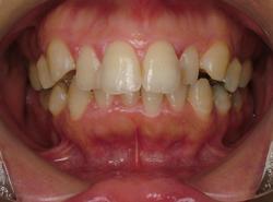 上顎前突出(出っ歯)治療前正面