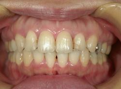上顎前突出(出っ歯)治療後正面