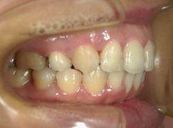 上顎前突出(出っ歯)治療後横